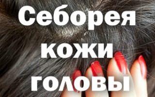 Себорея кожи головы лечение народными средствами
