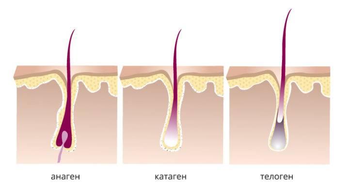 выпадение волос при гипотиреозе лечение