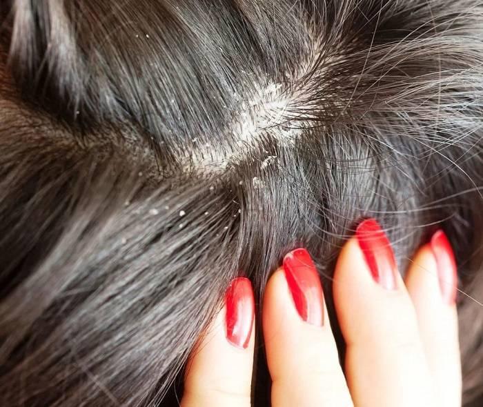 Грибок волосистой части головы