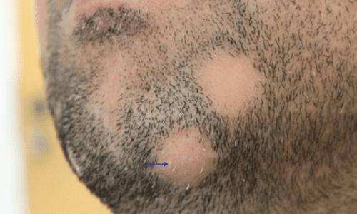 Проблема очаговой алопеции у мужчин