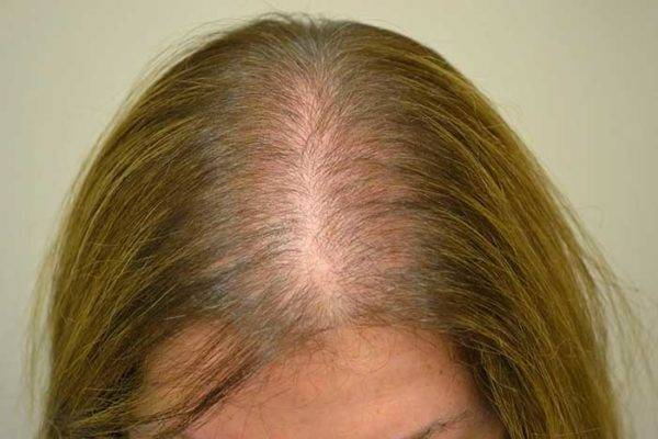 Анагеновое выпадение волос