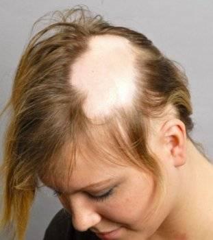 После алопеции растут белые волосы