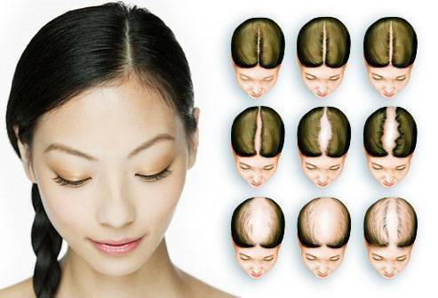 Цинк и выпадение волос