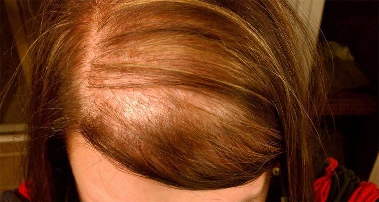 При диффузной алопеции потеря волос происходит линейно