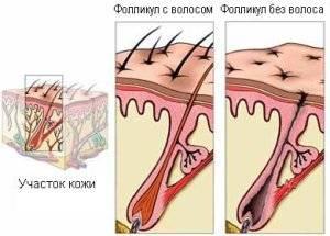 84572-prichiny-vypadeniya-volos-na-lobke-u-muzhchin