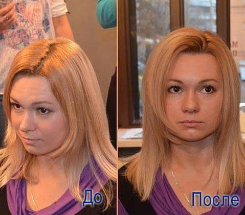 прикорневой объем флисинг фото до и после