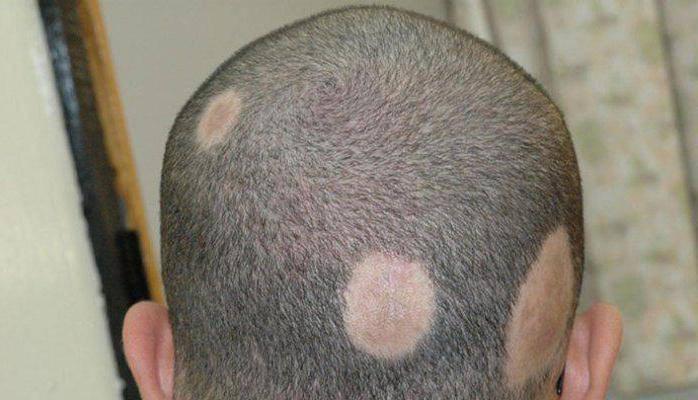 Воспаление кожи головы лечение народными средствами