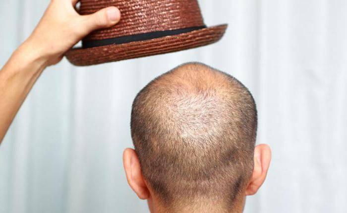 от выпадения волос лосьон