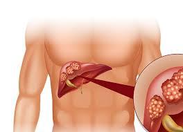 Рак печени: симптомы, причины, лечение