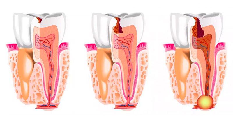 Киста зуба: симптоматика, причины возникновения, лечение